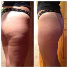 Amazing results from the ageLOC Galvanic Body Spa. No Surgery, No needles!!