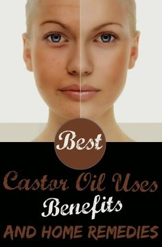 Castor oil  is known to be a 'wonder oil' that has diverse benefits linked to it. Castor oil , which has been used for hundreds of years fo...