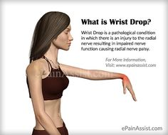 Wrist Drop is a pathological condition in which there is an injury to the radial nerve resulting in impaired nerve function causing radial nerve palsy. Functionally speaking, the function of the radial nerve is to carry signals from the brain to the hand. Wrist Pain, Wrist Brace, Nerve Palsy, Radial Nerve, Physical Therapy Exercises, Nerves Function, Medical Anatomy, Hand Therapy, Anatomy And Physiology