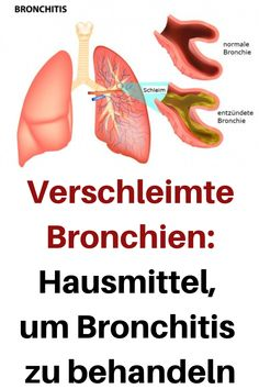 Bronchial asthma bronchitis Indicators & Signs and just how to conquer naturally as well as properly Low Fever, Acute Bronchitis, Shortness Of Breath, Signs And Symptoms, Natural Treatments, Better Life, The Cure, Health Fitness, Health And Wellness