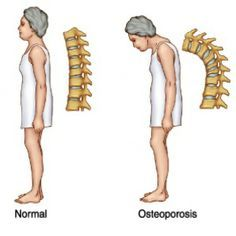 Natural Home Remedies Natural Cure For Osteoporosis - How To Cure Osteoporosis Naturally Natural Health Remedies, Natural Cures, Natural Healing, Herbal Remedies, Natural Foods, Holistic Remedies, Natural Skin, Health And Beauty, Health And Wellness