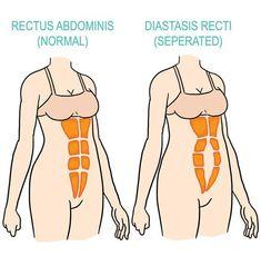 Postpartum Exercise | Post-Pregnancy Workout | Bellefit