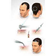 Hair Transplant - The Private Clinic