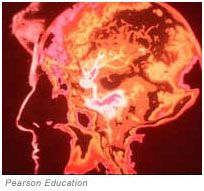 infrared image of the brain---ADD/ADHD