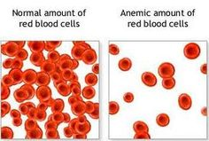 HOW TO TREAT ANAEMIC CONDITION