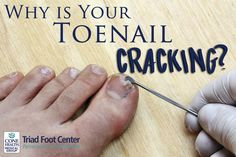Has Anyone had a cracked toenail? - Diabetes Daily
