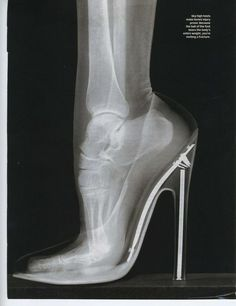 Funny pictures about X-Ray of foot in high heeled shoe. Oh, and cool pics about X-Ray of foot in high heeled shoe. Also, X-Ray of foot in high heeled shoe photos. Buy Shoes, Me Too Shoes, Women's Shoes, Pointe Shoes, Ballet Flats, Crazy Shoes, Flat Shoes, Nike Shoes, Golf Shoes