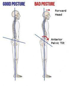 Anterior Pelvic Tilt Posture