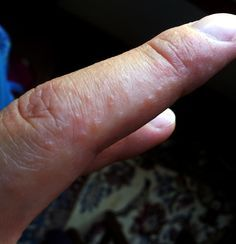 I use to get these on my hands a lot before I was diagnosed with celiacs not knowing that's what it was! Interesting!