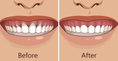 Top Oral Health Advice To Keep Your Teeth Healthy. The smile on your face is what people first notice about you, so caring for your teeth is very important. Unluckily, picking the best dental care tips migh Gum Health, Teeth Health, Oral Health, Dental Health, Dental Care, Public Health, Health Care, Herbal Remedies, Health Remedies