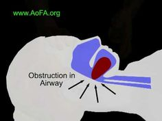 Animation showing blocked airway for CPR