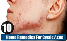 10 Very Effective Home Remedies For Cystic Acne