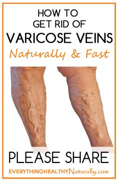 How to Get Rid of Varicose Veins Naturally & Fast