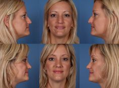 You don't like your nose, and you want to improve appearance. Or do you have a problem with nose aesthetic surgery? Best Plastic Surgeons, Rhinoplasty Before And After, Great Hair, Surgery, Blog, Reality Check, Blogging