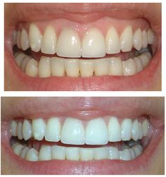 Whitening veneers after hours dental clinic,all on 4 dental implants teeth beginning to rot,dental implants prices cosmetic dentistry. Whitening Skin Care, Teeth Whitening Remedies, Teeth Whitening System, Natural Teeth Whitening, Whitening Kit, Blend A Med, Beauty Care, Beauty Hacks, Beauty Tips