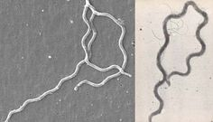 2016-08-30-1472560428-8942749-lyme_and_syphilis_spirochetes.jpg