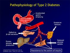 http://radharenu.hubpages.com/hub/how-to-tackle-pre-diabetes-symptoms-for-an-easy-cure