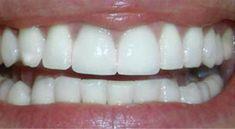 Too gummy Too short Too flat bottom teeth need work too Perfect Teeth, Perfect Smile, Teeth Whitening Cost, Tartar Removal, Dental Check Up, Dental Technician, Tooth Sensitivity, Tooth Enamel, Dental Health