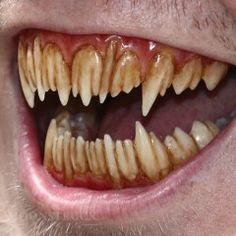 Isis - Custom Demon Teeth - Stained