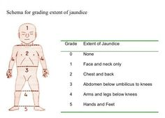 Nurses used this five-point scale to grade the farthest extent of jaundice in… Newborn Nursing, Ob Nursing, Nursing Notes, Maternity Nursing, Newborn Care, Pediatric Nursing, Medical Assistant, Midwifery, Nicu