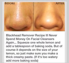 Natural Black Head Remover