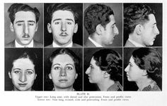 """ Plate II. Upper row: Long nose, with dorsal and alar protrusion. Front and profile views. Lower row: Nose long, twisted, wide and protruding. Front and profile views. - J.-Sheehan,-Plastic-Surgery-of-the-Nose"