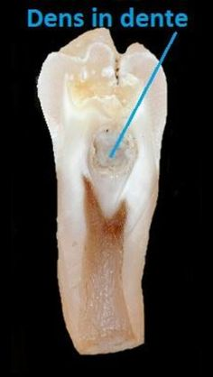 Dentaltown - dens in dente [den′tə] is an anomaly of the teeth, found primarily in the maxillary lateral incisors and characterized by invagination of the enamel. The condition causes a radiographic image suggestive of a tooth within a tooth. Also called dens invaginatus, gestant odontoma.