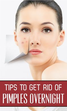Tips to Get Rid Of Pimples Overnight | Healthy Fit Ladies