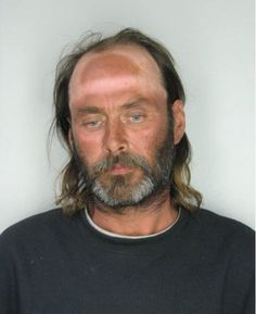 HAHAHA Backwards hat tan lines, nice mugshot!