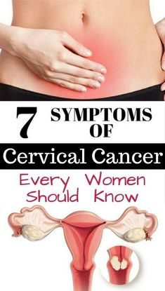 Cervical cancer which may be the cause of death in women, can be cured if detected in time. The most common cause of this type of disease is infection with human papilloma virus (HPV). Certain types of HPV are responsible for the rapid spread of the cancerous cells. Although the signs of cervical cancer are not that obvious, however, you have to follow any changes that may be a sign of disease. Talk to your doctor if you notice them.
