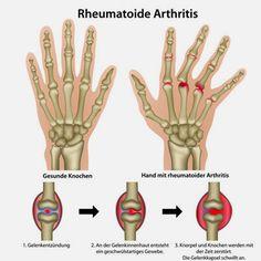 Bei Rheuma handelt es sich um die häufigste entzündliche Erkrankung der Gelenke, die meist an beiden Körperhälften gleichzeitig auftritt. Medizinisch korrekt wird sie rheumatoide Arthritis genannt, während früher die Bezeichnung chronische Polyarthritis üblich war.