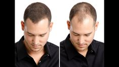 How To Regrow Your Hair Hair Regrowth For Men & Women 8 Home Remedies Part - Hair Loss Hair Regrowth Shampoo, Natural Hair Regrowth, Losing Hair Women, Hair Loss Women, Regrow Hair Naturally, Apple Cider Vinegar For Hair, Hair Loss Medication, Hair Loss Remedies, Hair Loss Treatment
