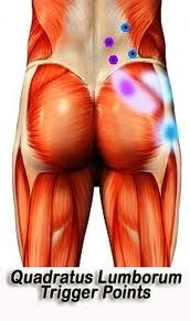 Buttocks - trigger points
