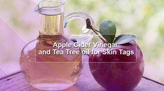 Apple Cider Vinegar with Lemon Juice and Tea Tree oil for Skin Tags Tea Tree Oil Uses, Tea Tree Oil For Acne, Apple Cider Vinegar Warts, Skin Tag On Eyelid, Oils For Dandruff, Combination Skin Care, Essential Oils For Skin, Beauty Soap, Coconut Oil For Skin