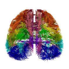 La revista Nature presenta dos investigaciones realizadas en el Allen Institute for Brain Science (EE UU) que aportan avances en el conocimiento del cerebro humano. Mientras que la primera describe el cableado de las conexiones nerviosas a resolución media del ratón, la segunda revela detalles y diferencias sobre los genes implicados en el desarrollo del cerebro prenatal de humanos y roedores.