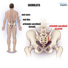 SACROILEITA - cauza pentru durere de spate și de șold - Servus Expert Med School, Good To Know, Infographic, Learning, Study, Healthy, Medicine, Anatomy, Biology