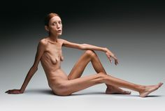 Oliviero Toscani Campagna ANOREXIA