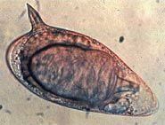 Schistosoma- parasitic worm.  passes from snails to humans