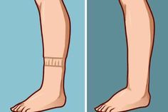 De cele mai multe ori, aceste inflamații se datorează retenției de apă. Acest semn poate duce cu gândul la o afecțiune mult mai periculoasă și anume, o boală renală, artrită, gută sau alte boli. De aceea este foarte important să mergi la medic, dacă observi orice modificare la nivelul picioarelor.  Însă, dacă deja ai …