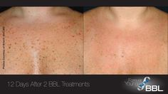 Forever Young BBL™ | Sciton http://foreveryoungbbl.com/ At LeBeau Clinic we have the revolutionary Sciton Laser www.lebeauclinic.com