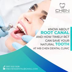 Getting trouble in eating and speaking because of the aching tooth. Get your root canal treatment today through expert dentist in Mbchen Dental clinic in taguig without any fear. We will remove your pain in a painless manner. Best Dentist, Dentist In, Dental Hygienist, Dental Care, Tooth Infection, Root Canal Treatment, White Smile, Great Smiles, Dental Services