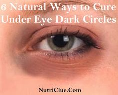 Dark Circles Under Eyes Treatment - 6 Natural Ways to Cure Under Eye Dark Circles