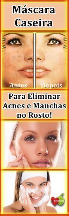 Máscara Caseira Para Eliminar Manchas e Acne em 7 Dias! #pele, #acne, #acnetreatment, #saúde, #saúdebemestar, #saúdedamulher, #beleza, #máscarafacial, #mulher, #tratamentofacial, #vida