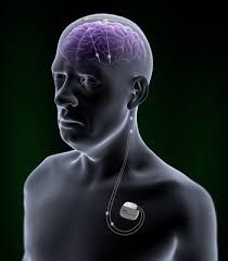 Deep Brain Stimulation (DBS) is a treatment for selected patient suffering from Parkinson's disease dystonia and most forms of tremors.