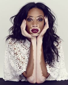 Former America's Next Top Model contestant Chantelle Winnie speaks of her skin condition vitiligo with the Guardian and poses for gorgeous photos Lr Beauty, Fashion Beauty, Real Beauty, Black Beauty, Beauty Women, Natural Beauty, Pretty People, Beautiful People, Beautiful Models
