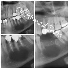 Chist de origine odontogena din cauZa tratamente de canal incorectese realizeaza o chistectomie si repozitionarea nervului alveolar inferior dupa ce a fost chistul aderent pe elin poza nr 3 observam ca operatia a fost facuta cu succes! #طب_الأسنان #طبالأسنان #bucharest #romania #oromaxilofacial #smile #smiles #hollywoodsmile #art #famous #dental #dentist #dentistry #dentalcare #dentalschool #ocluzologie #odontologie #oralsurgeon #oralsurgery #stomatologie #cosmeticdentistry 0040721513515…