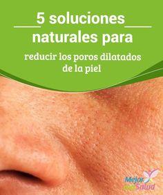 5 soluciones naturales para reducir los #Poros dilatados de la #Piel Algunos remedios naturales pueden ayudar a reducir los poros dilatados de la piel. En esta ocasión te compartimos 5 soluciones caseras. #Belleza