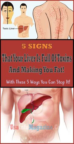 5 Signs That Your Liver Is Full Of Toxins And Making You Fat! With These 5 Ways You Can Stop It!