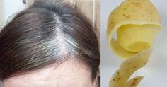 Du bekommst graue Haare? Dann solltest du das hier mit Kartoffelscheiben machen!