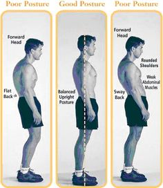 "Perfect Posture Series: How To Fix Lower Body Imbalances; Lumbo-Pelvic-Hip Complex or ""Sway-Back"""